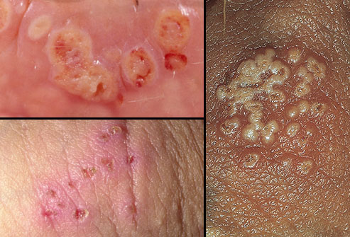 10 things you should know about herpes