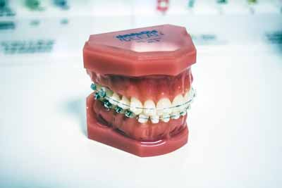 How To Make Full Use Of Your Dental Insurance Plan While You're Abroad